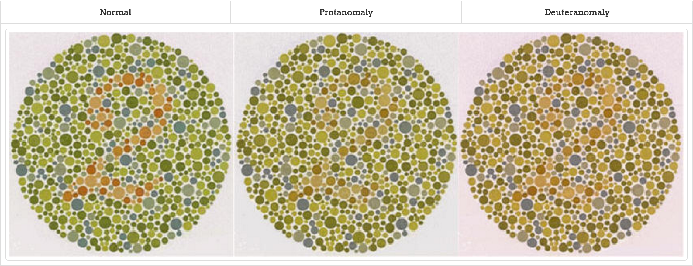 Noises in colour blindness – Colour blindness tests. | dream ...